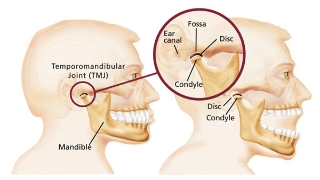 Temporomandibular Joint Treatment In Tacoma Wa Bright Smile Dental